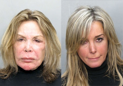 Elsa Patton, Marisol Patton, Mugshot