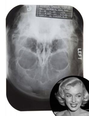 Marilyn Monroe, Plastic Surgery, X-Ray, Auction