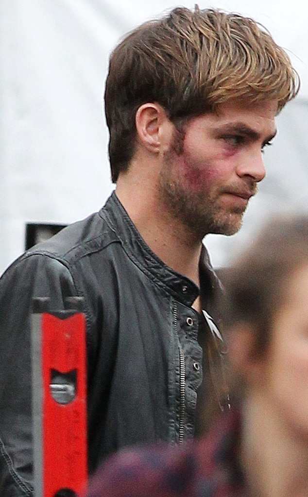Chris Pine, Horrible Bosses 2, Bruises