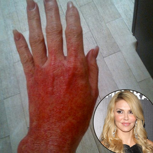 Brandi Glanville, Burned Hand