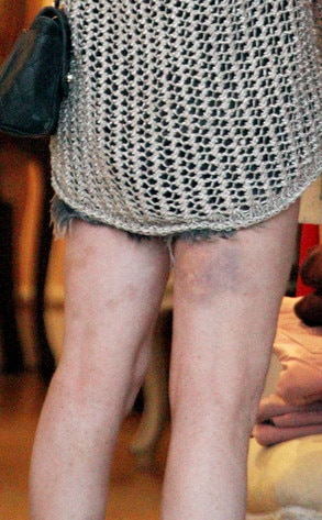 Lindsay Lohan, Bruises