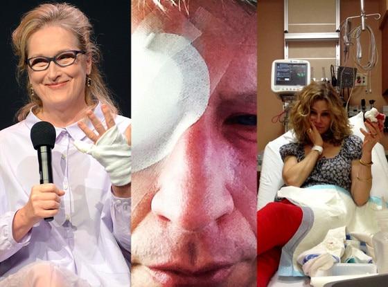 Celeb Injuries, Meryl Streep, Kyra Sedgwick, Anderson Cooper