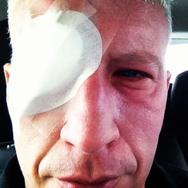 Celeb Injuries, Anderson Cooper