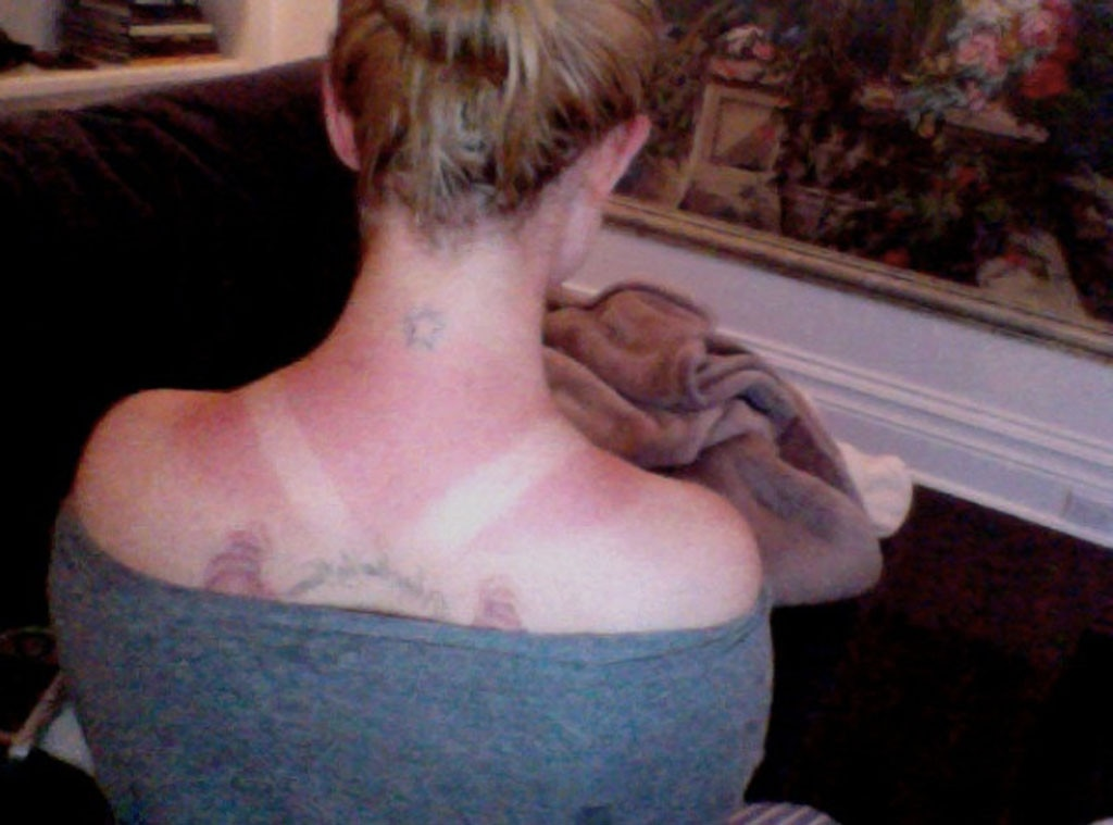 Sunburned Celebs, Kelly Osbourne, Twit Pic