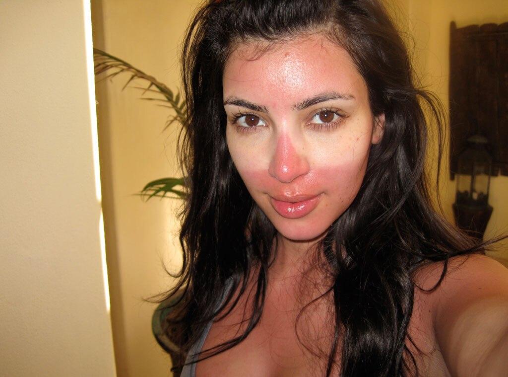 Sunburned Celebs, Kim Kardashian