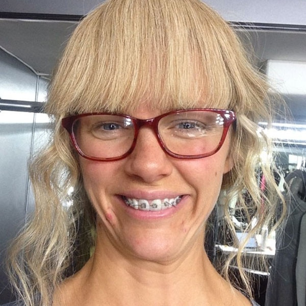 See Brooklyn Decker With Pimples Braces And Nerd Glasses