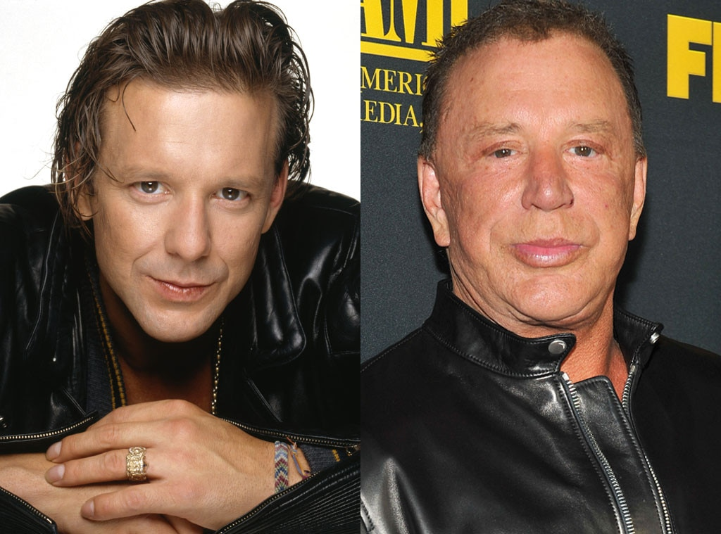 Mickey Rourke, Plastic Surgery, Before and After