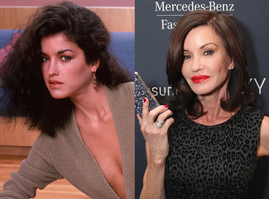 Janice Dickinson, Plastic Surgery, Before and After