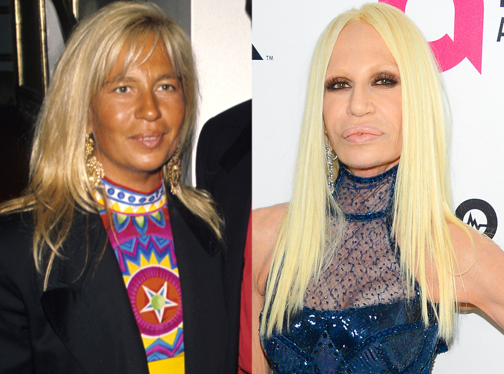 Donatella Versace From Celebs Who Deny Getting Plastic Surgery