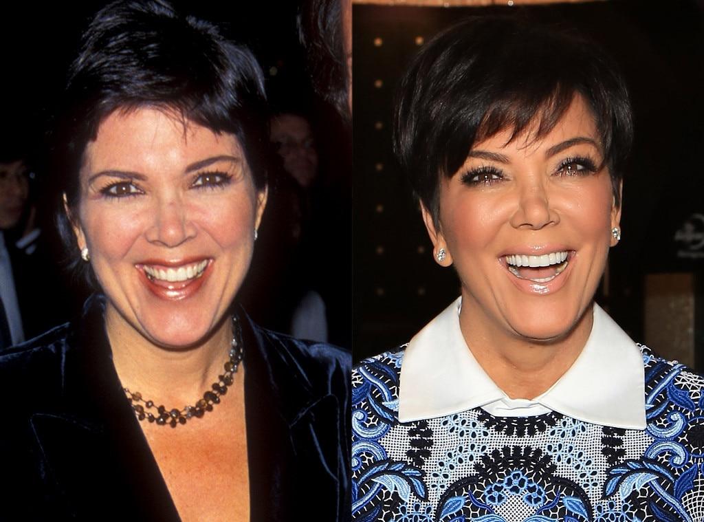 Kris Jenner, Plastic Surgery