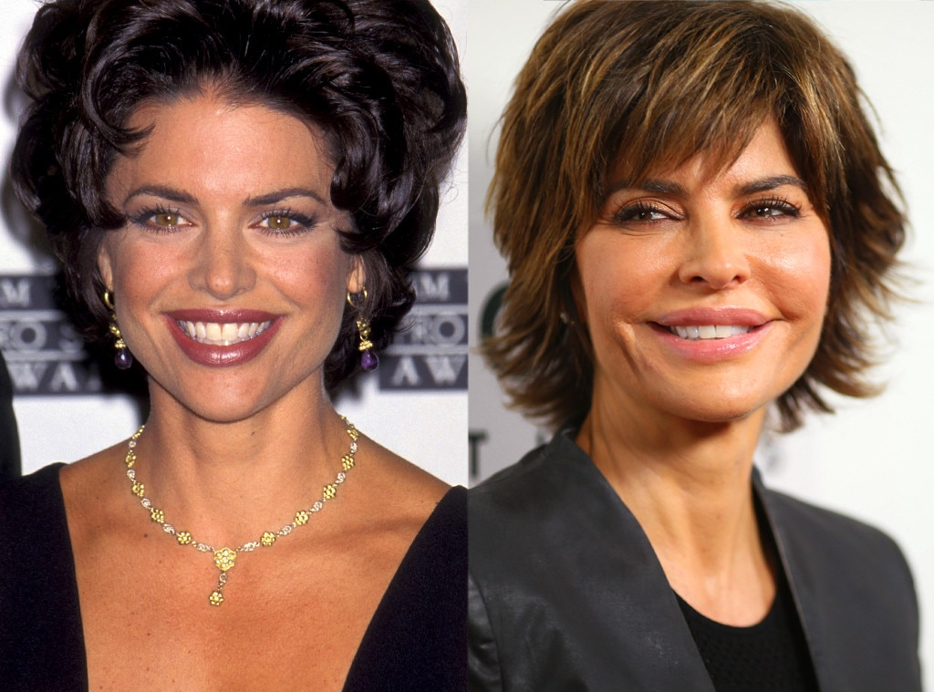 Lisa Rinna, Plastic Surgery Transformations