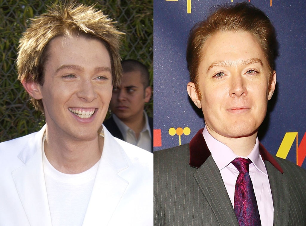 Clay Aiken, Plastic Surgery Before and After