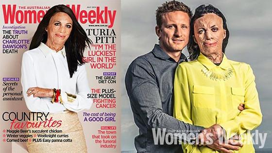 Turia Pitt, Australia Women's Weekly