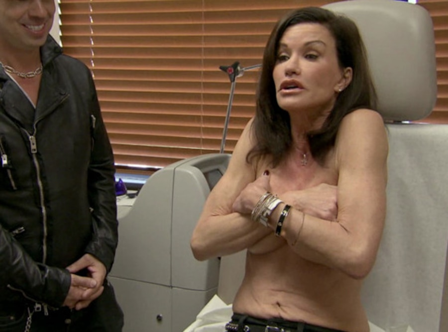 Botched, Janice Dickinson
