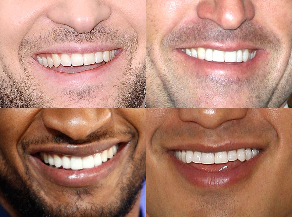 Best Smile, Patrick Dempsey, Mario Lopez, Usher, Justin Timberlake