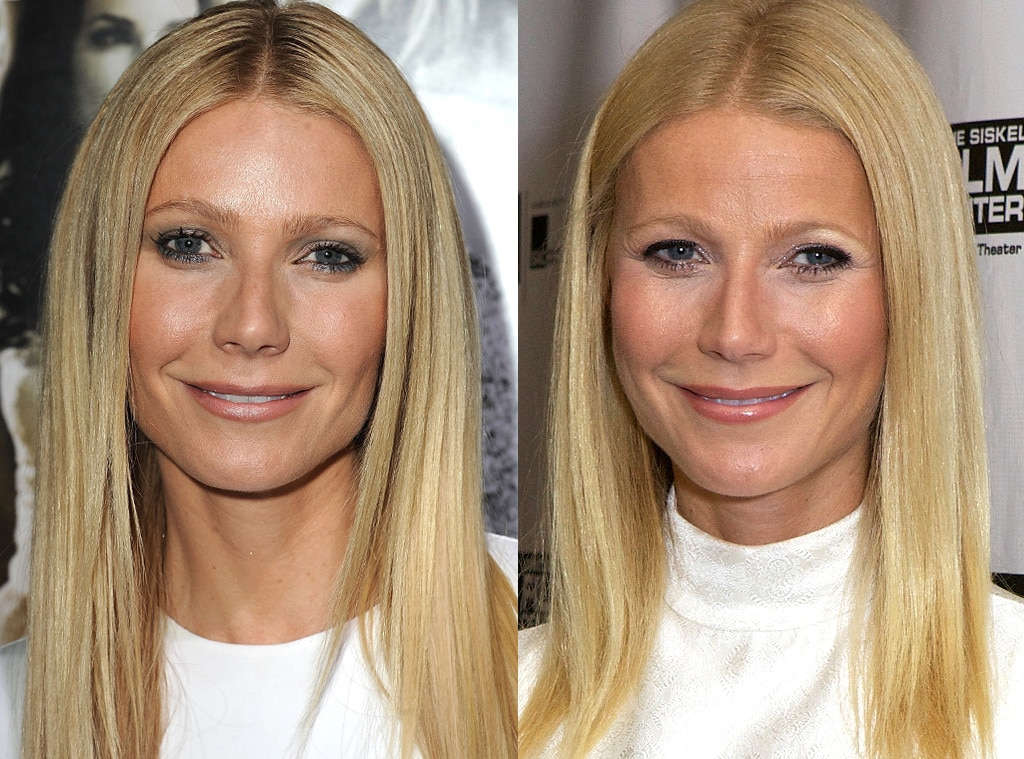 Gwyneth Paltrow, Plastic Surgery Before and After
