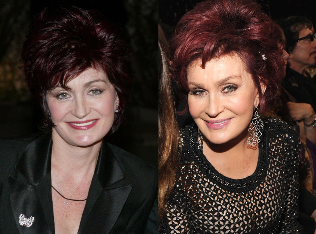 Sharon Osbourne, Plastic Surgery, Before and After