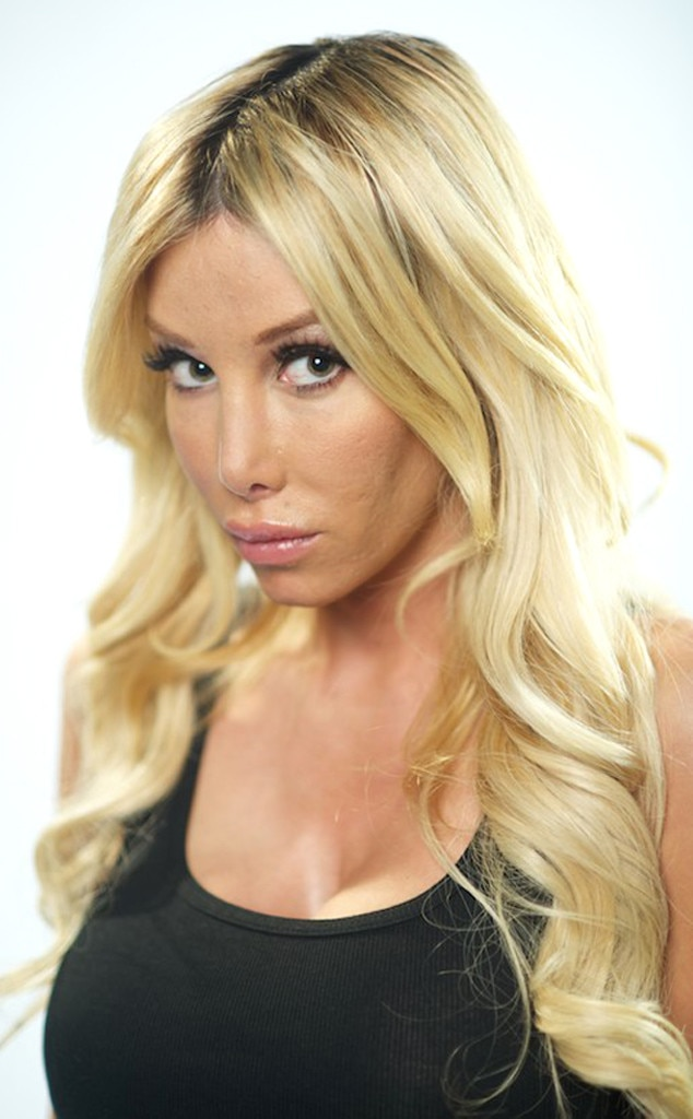 Kimber James, Botched