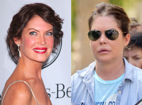 Lara Flynn Boyle, Before and After