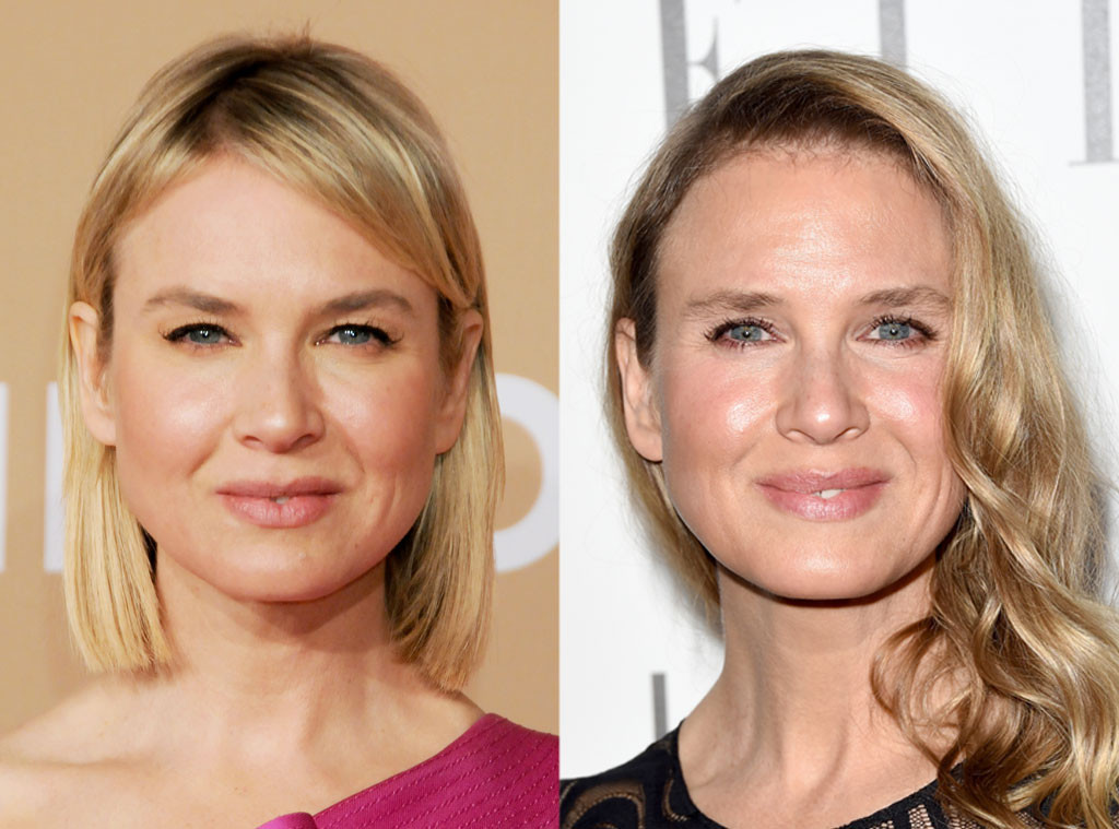 Renee Zellweger, Plastic Surgery Before and After