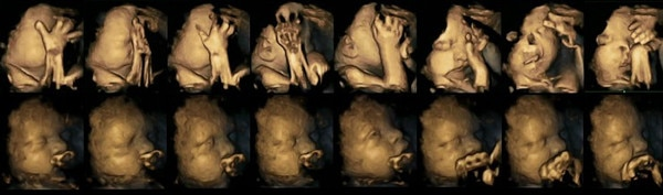 Unborn Baby, Mother smoking