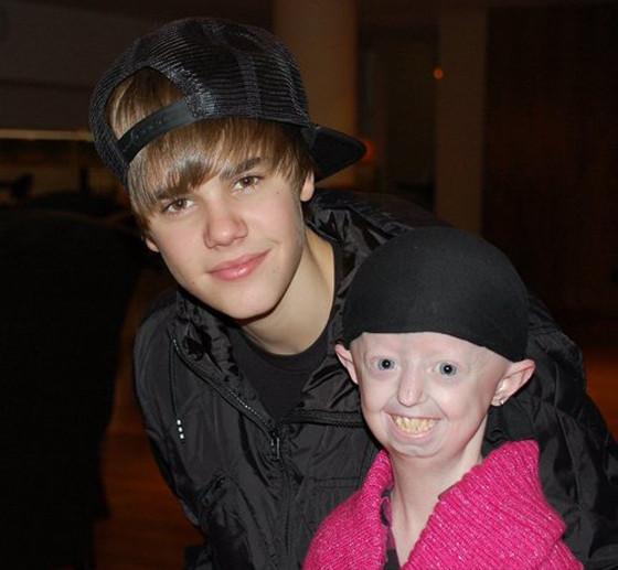 Hayley Okines, Justin Bieber