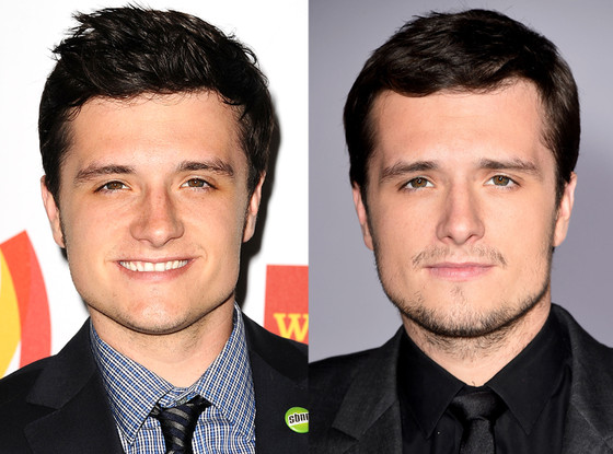 Josh Hutcherson, Deviated Septums