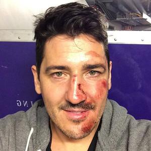 Jonathan Knight, Instagram, Injury