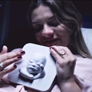 Blind Mother, 3D Ultrasound