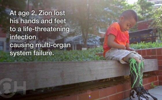 Zion Harvey, Hand Transplant