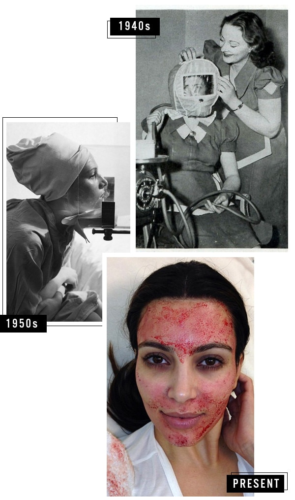 ESC, History of Skin Care
