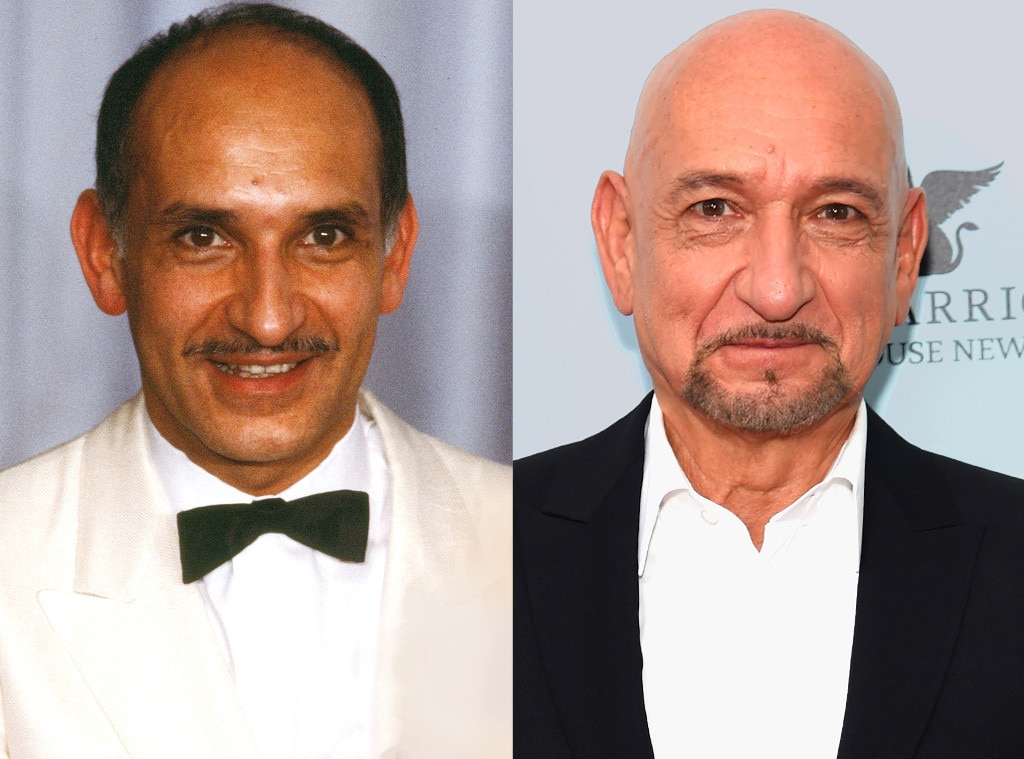 Sir Ben Kingsley, Hair