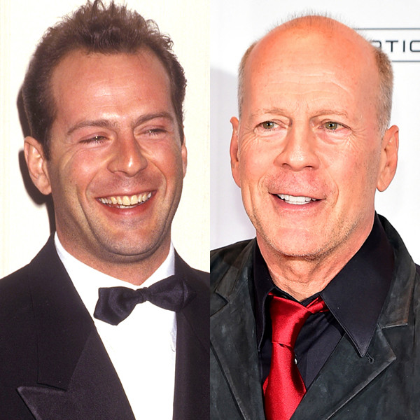 Bruce Willis, Hair