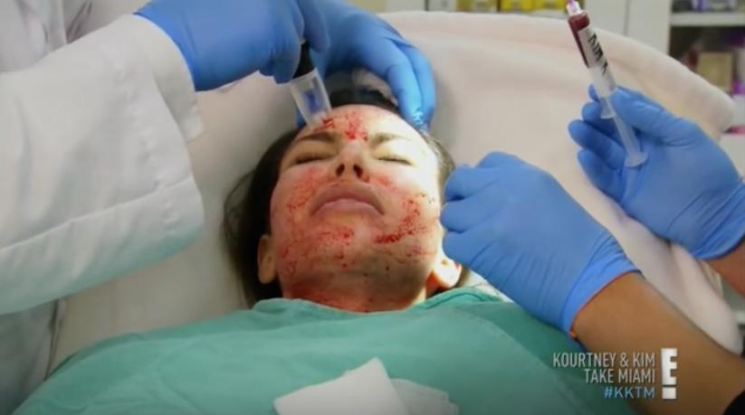 Kim Kardashian, Vampire Facial