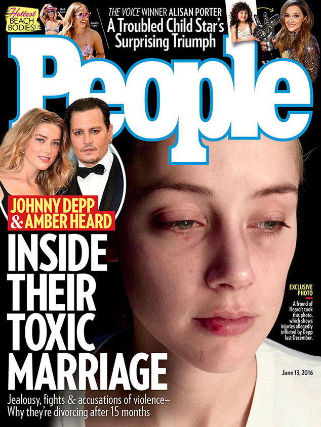 Amber Heard, Johnny Depp, Abuse, People