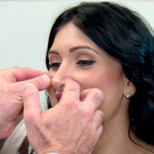 how to fix a collapsed nostril