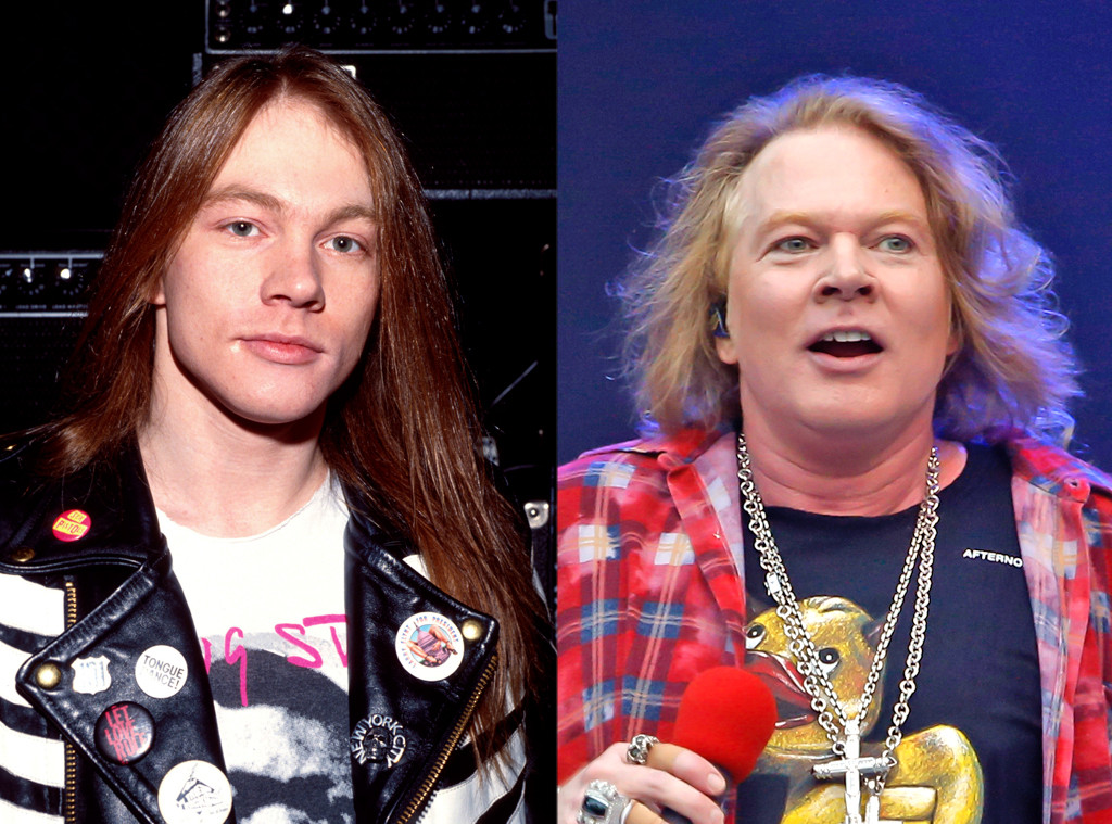 Axl Rose From Face Changes That Shocked The World E News