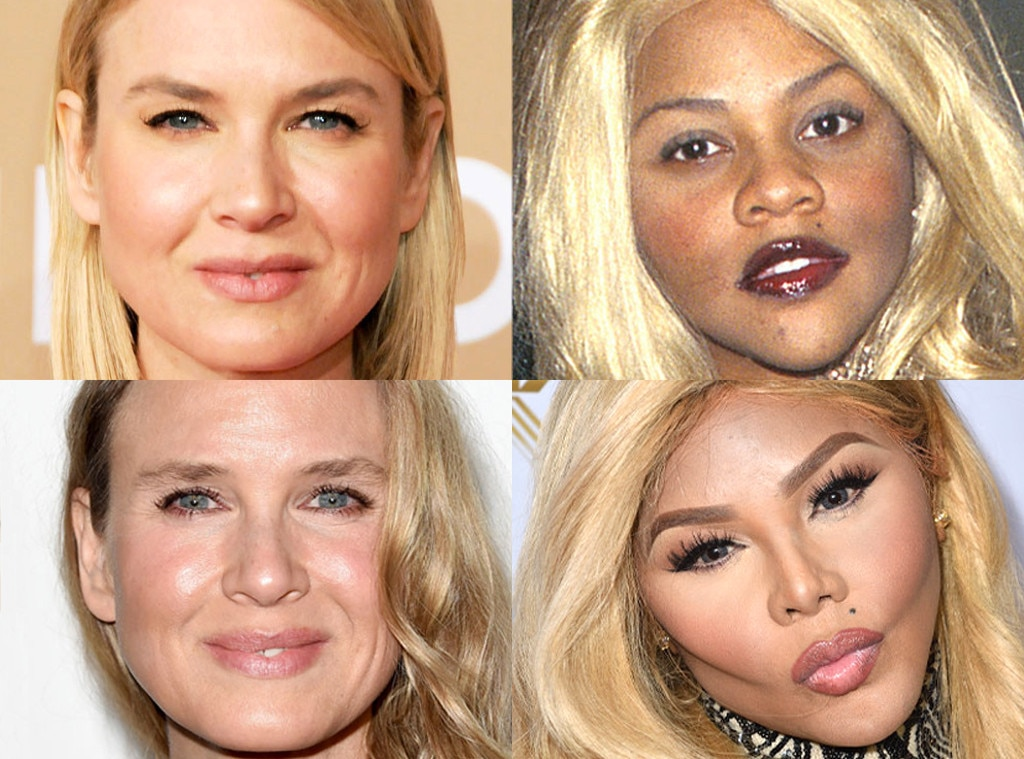 Renee Zellweger, Lil Kim, Plastic Surgery Before and After