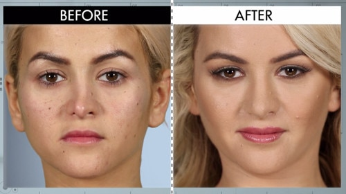 Image result for botched before and after