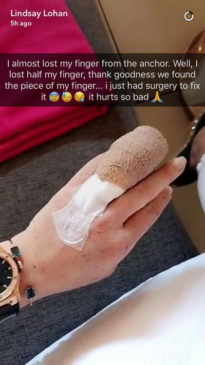 Lindsay Lohan, Finger, Bandaged