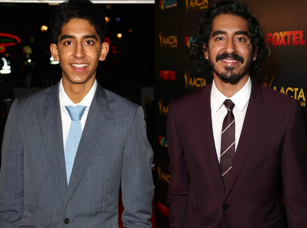Then and Now, Dev Patel