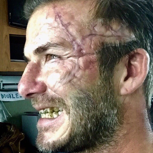 David Beckham's Scarred Face and Rotten Teeth: Charlie Hunnam ...
