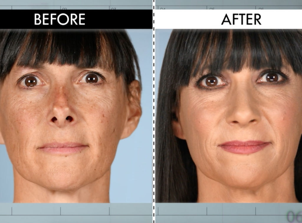 """Botched Patient's Nose Is """"Reborn"""" Without """"Horns"""" On Shocking Episode: See The Results!"""