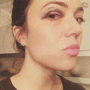Mandy Moore, Black Eye