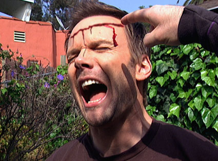 Joel McHale with bleeding head