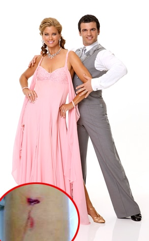 DWTS, Kathy Ireland, Tony Dovolani, Injury