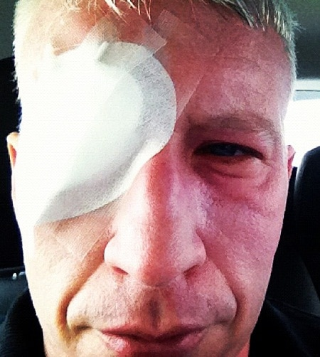 Anderson Cooper Eyepatch