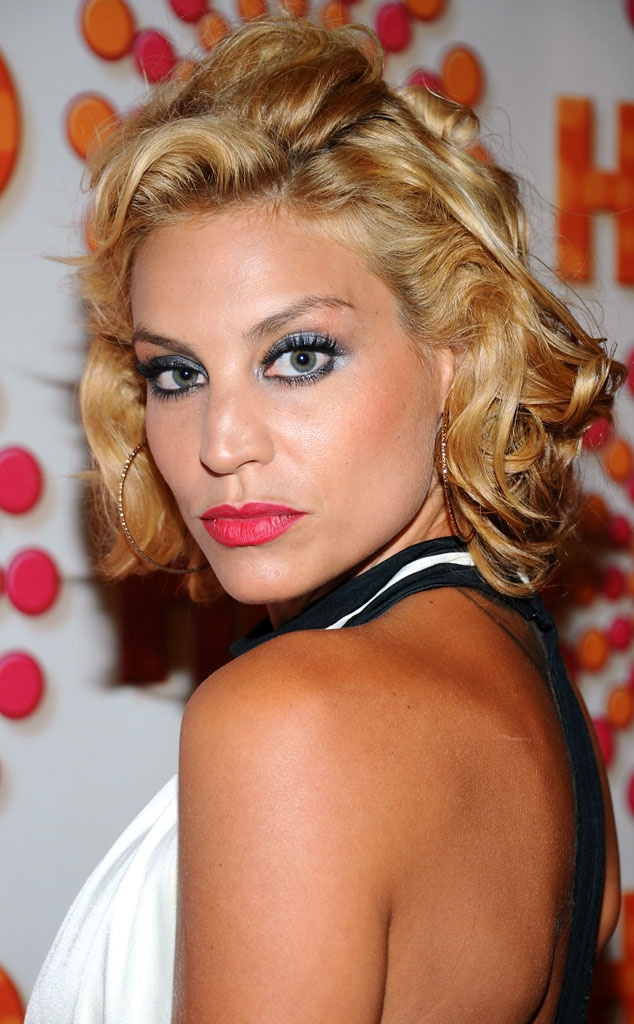 top model's lisa d'amato injures face in freak accident