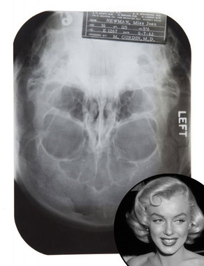 Marilyn Monroe, Plastic Surgery, X-Ray, Auction