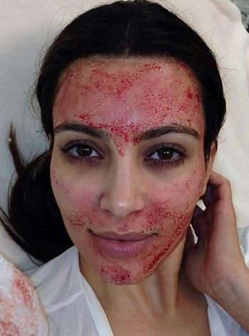 Kim Kardashian, sangre
